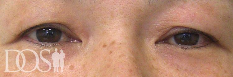 当院患者様(44歳):まぶたのタルミ