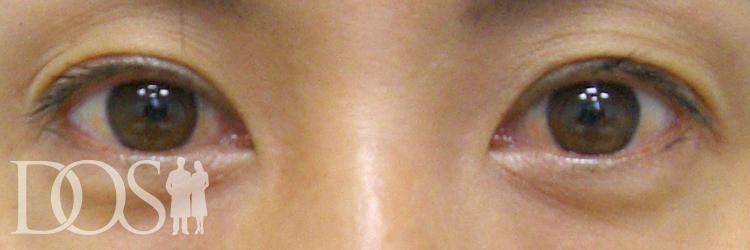 当院患者様:眼瞼下垂