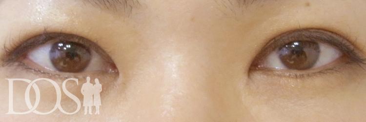 当院患者様(35歳):二重形成、目の幅拡大、厚いまぶたの改善