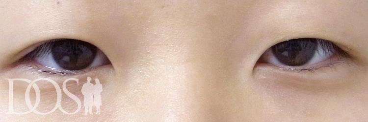 当院患者様(19歳):目の幅拡大、二重の幅変更