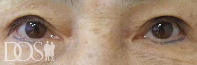 当院患者様(63歳):眼瞼下垂