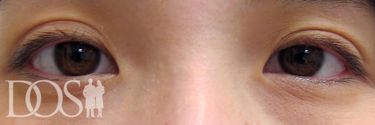 当院スタッフ(20代):眼瞼下垂