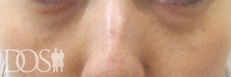 当院患者様(40代):目の下のたるみ
