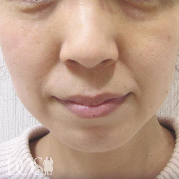 当院患者様(46歳):目の下のたるみ、口元のしわ