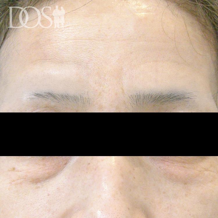当院患者様(48歳):額のしわ、目の下のたるみ