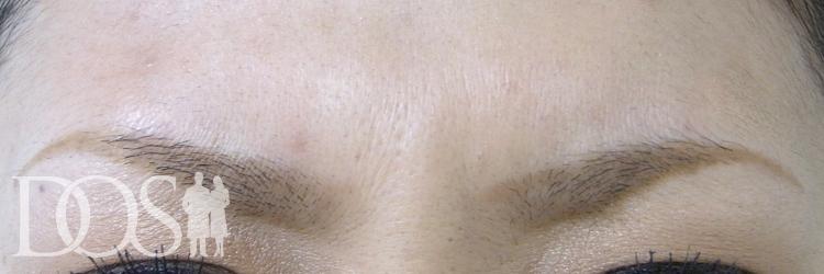当院患者様(30歳):眉間のしわ