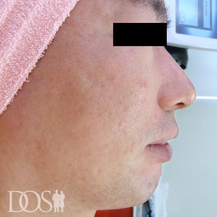 当院患者様(31歳):ニキビ・ニキビ痕