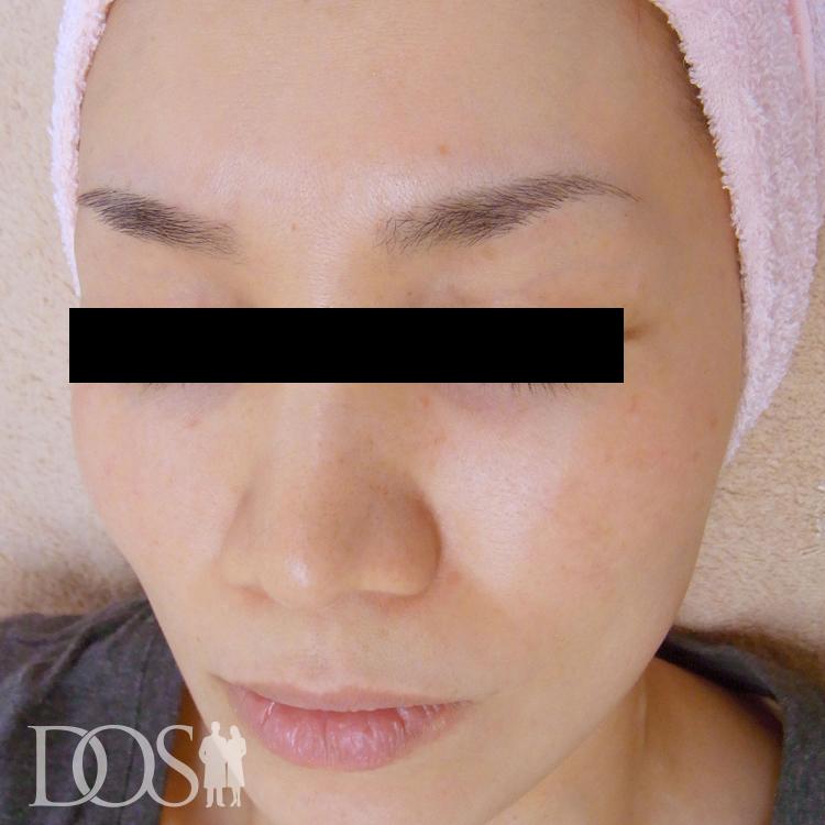 当院患者様(40歳):赤ら顔