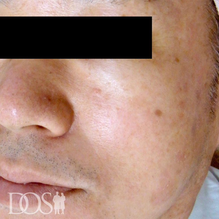 当院患者様(54歳):しみ