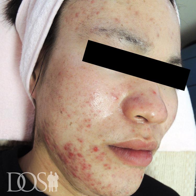 当院患者様(23歳):ニキビ・ニキビ痕