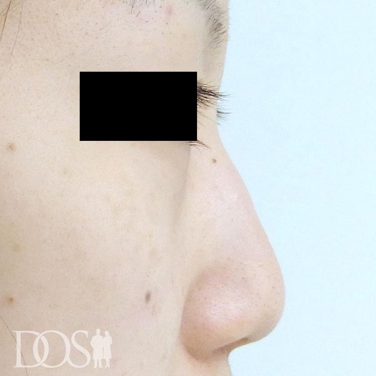 当院患者様(21歳):鼻筋