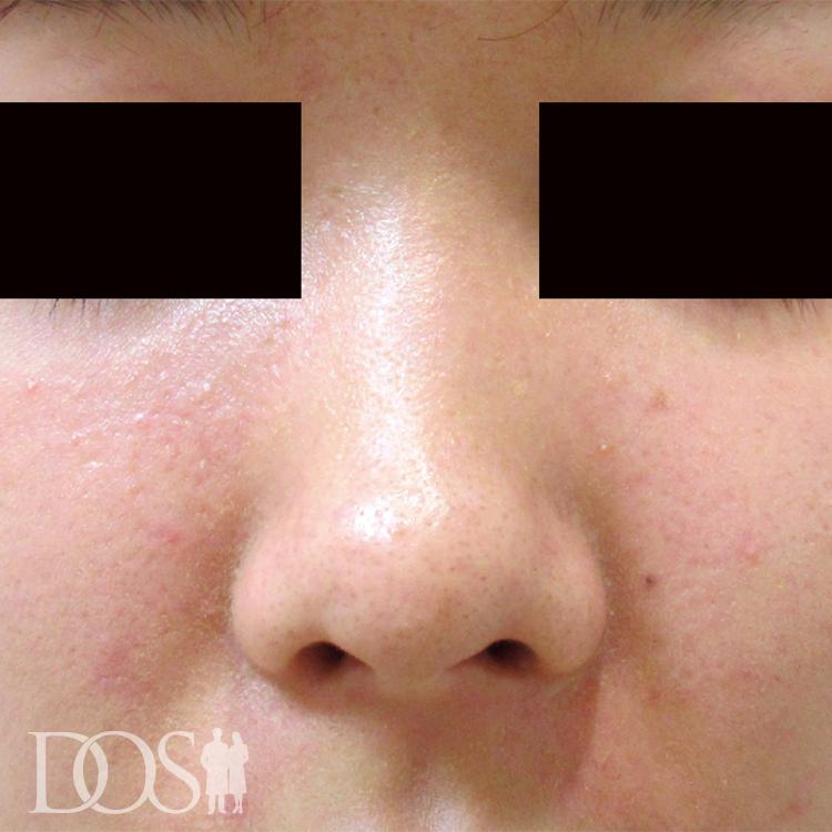 当院患者様(20代):鼻筋