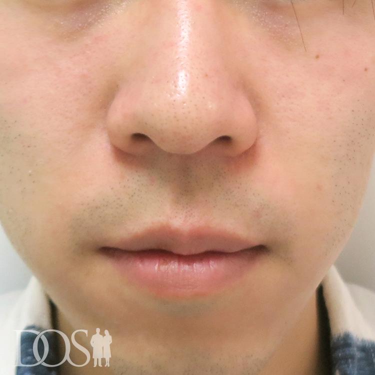 当院患者様(20代):小鼻