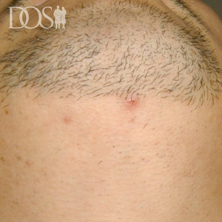 当院患者様:ヒゲ脱毛
