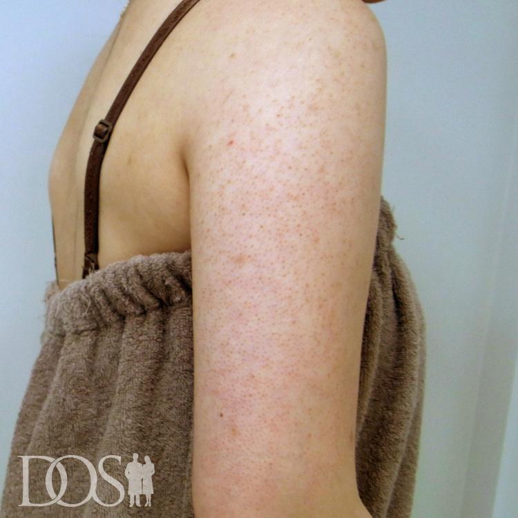 当院患者様(24歳):毛孔性苔癬