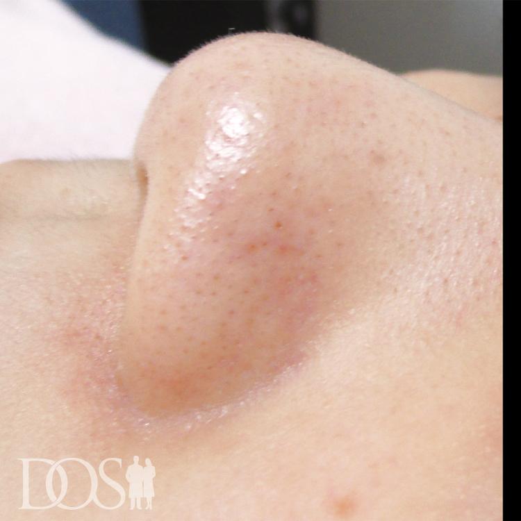 当院患者様(26歳):毛穴の黒ずみ