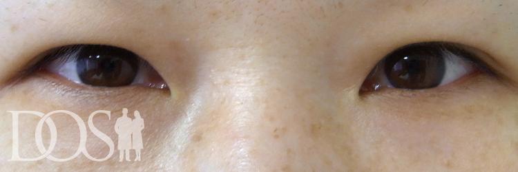 当院患者様(43歳):二重形成、厚いまぶたの改善