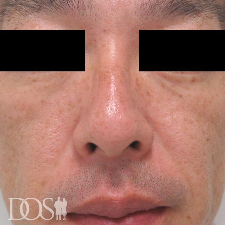 当院患者様(43歳):目の下と頬のたるみ