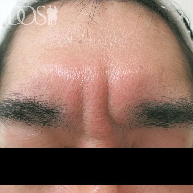 当院患者様(39歳):眉間のしわ