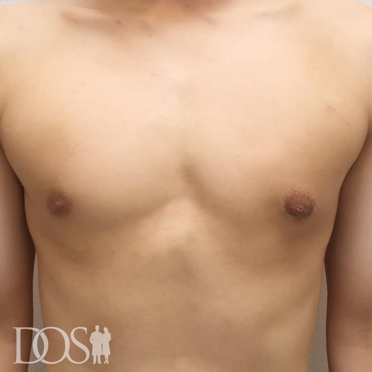 当院患者様(22歳):女性化乳房