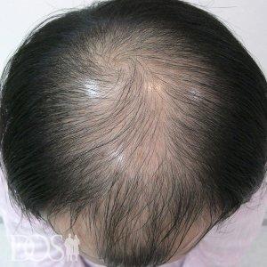 33歳 男性 AGA治療前