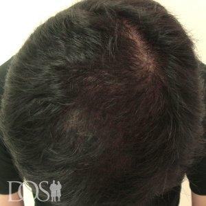 36歳 男性 AGA治療後