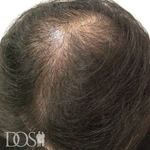 38歳 男性 AGA治療前