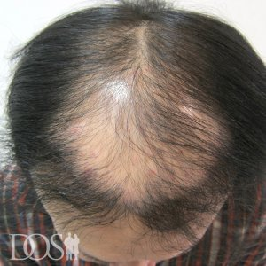 31歳 男性 AGA治療前