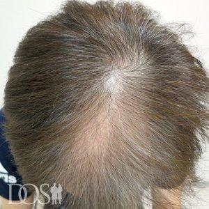 58歳 男性 AGA治療前