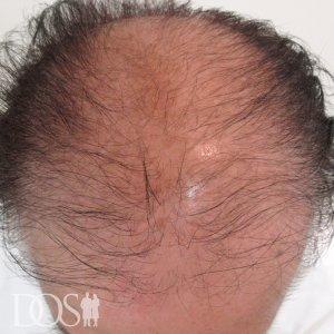 58歳男性 AGA治療前