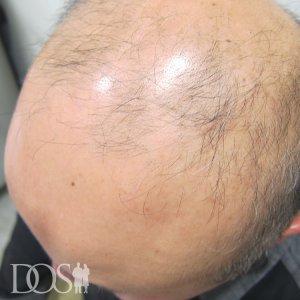 47歳 男性 AGA治療前