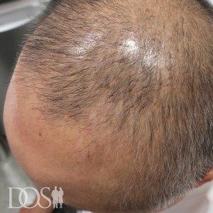 47歳 男性 AGA治療後