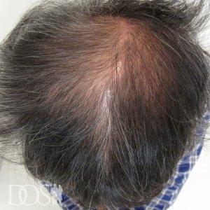 50歳 男性 AGA治療前