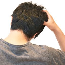 Aga 薄毛治療 発毛 育毛は男たちの美容外科へ 福岡 広島 南青山 札幌