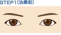 step1(治療前)